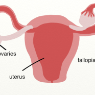 What Causes and Influences PCOS?