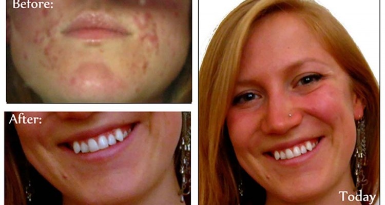 Everything You Need To Know About Acne In 3000 Words